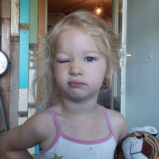 Zo werd Nova vanmorgen wakker. Met dank aan een mug.