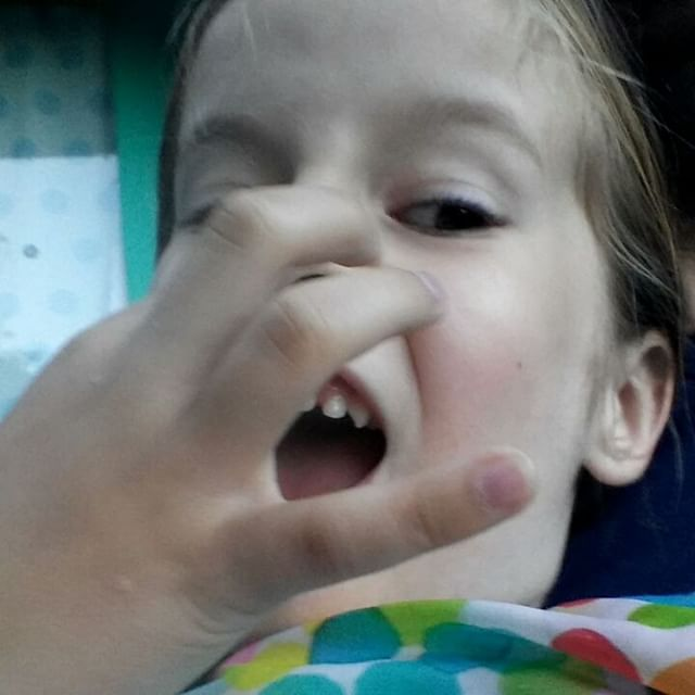 Filmpje : Lyses tand er bijna uit. 5 minuten na dit filmpje was ie er uit.